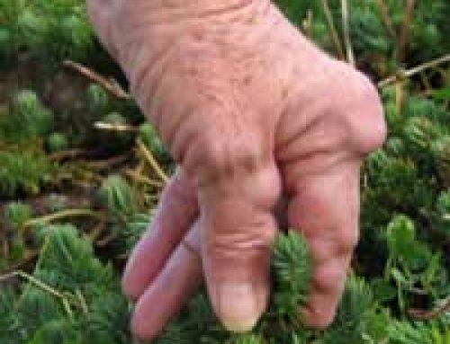 Hand Tools for Arthritis Suffers